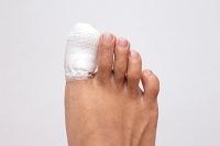 What Are Common Symptoms of a Broken Toe?