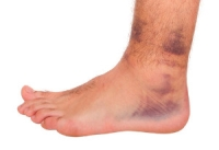Painful Ankle Sprains